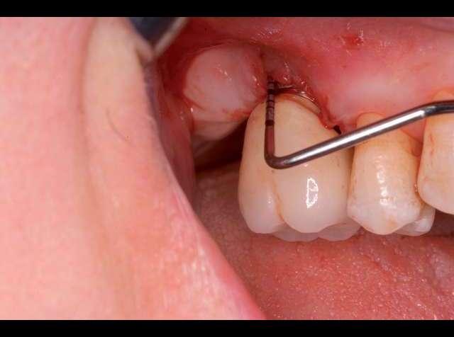 Имплант зуба ребенку